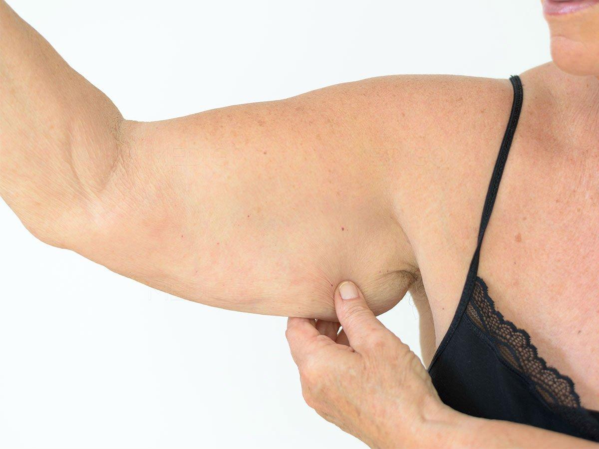 Eliminare la pelle flaccida dopo un grosso dimagrimento